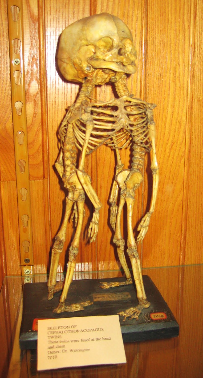 Strangest Museums, Mutter Museum, Philadelphia, USA, Siamese human skeletons