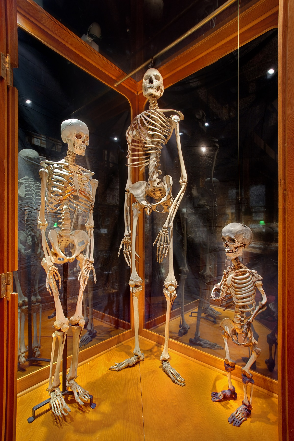 Museums Mutter Museum Philadelphia USA Abnormal Human Skeletons - Strangest museums in usa